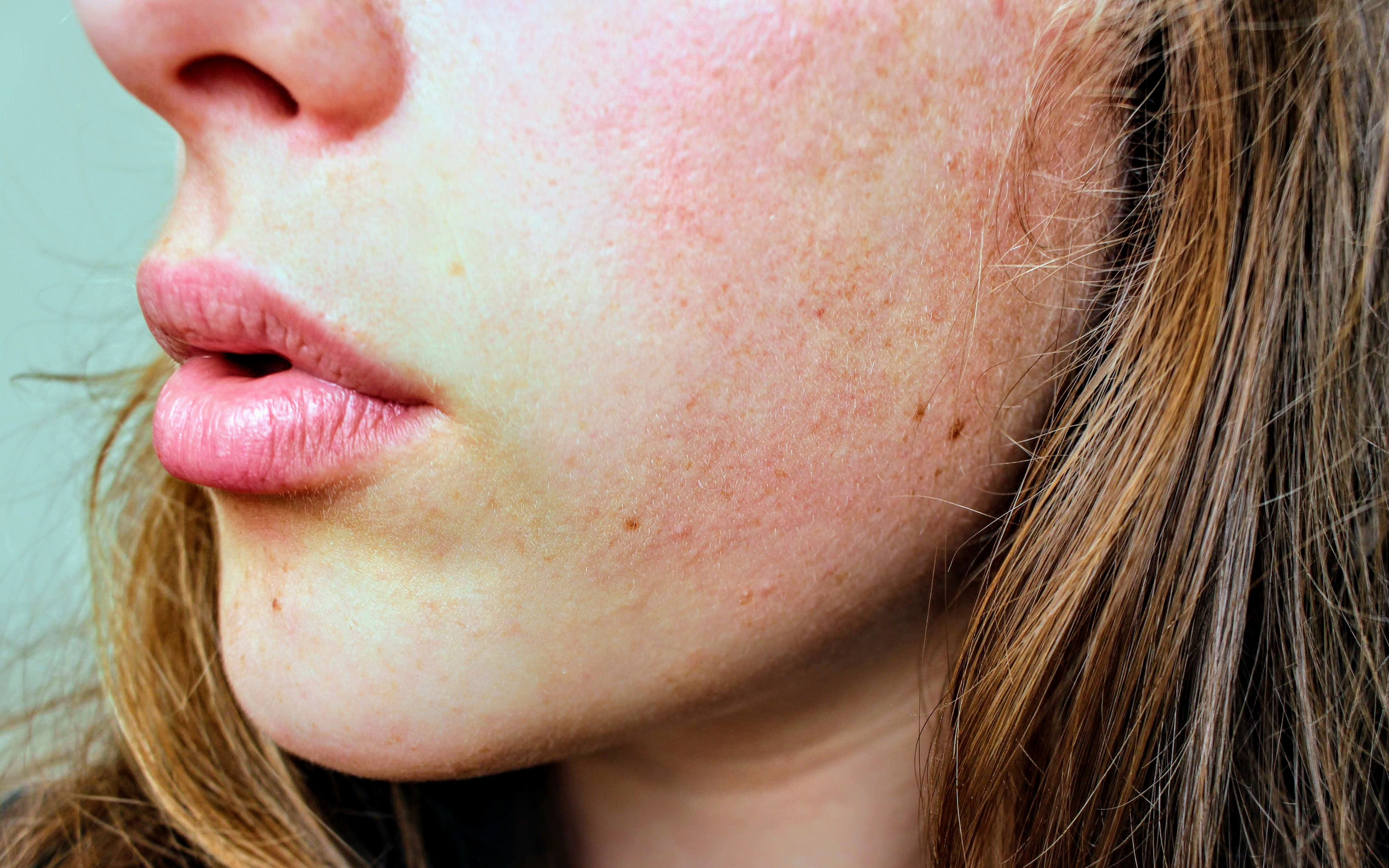 Treat Open pores